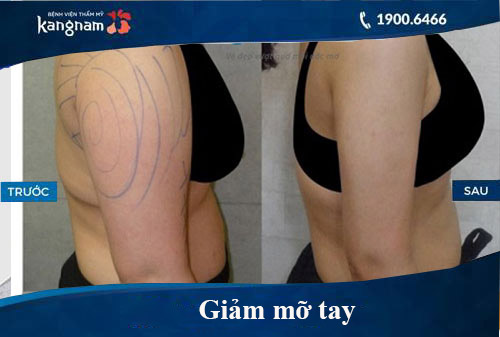 Hình ảnh trước và sau hút mỡ tại kangnam 10