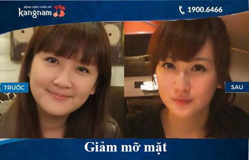 Hình ảnh trước và sau hút mỡ tại kangnam 11