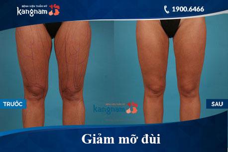 Hình ảnh trước và sau hút mỡ tại kangnam 13