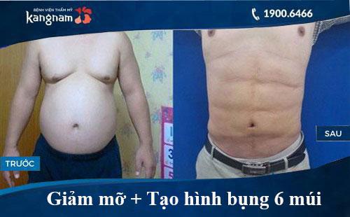 Hình ảnh trước và sau hút mỡ tại kangnam 3