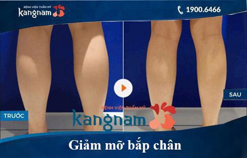 Hình ảnh trước và sau hút mỡ tại kangnam 5