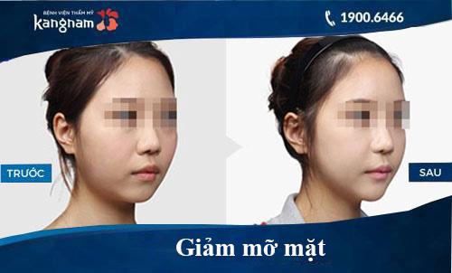 Hình ảnh trước và sau hút mỡ tại kangnam 9