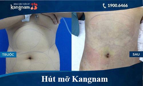 giảm béo ở kangnam có hiệu quả không, hut mo kangnam, hút mỡ kangnam