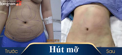 hút mỡ toàn thân không phẫu thuật