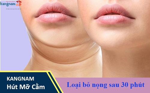 hút mỡ nọng cằm Kangnam