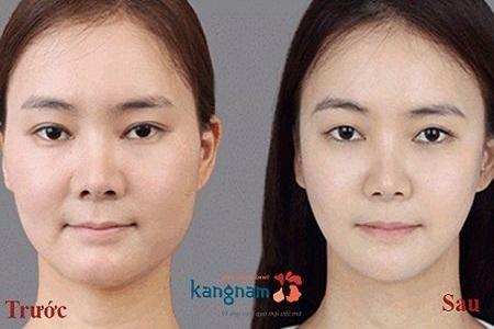 Kết quả khách hàng hút mỡ mặt tại Kangnam