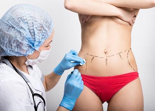Căng da bụng sau sinh