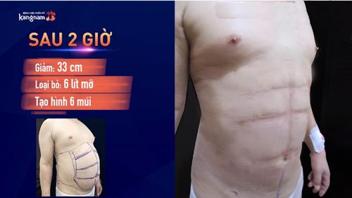 bài tập cardio giảm mỡ bụng cho nam