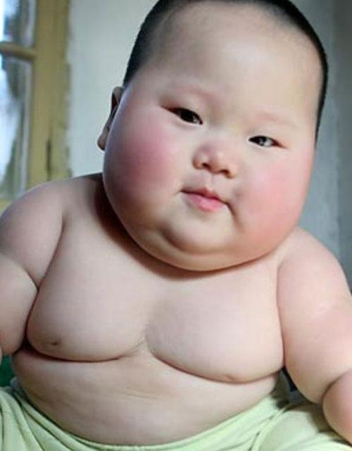 tác hại của béo phì ở trẻ em